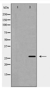 Western blot of Caveolin 2 expression in Human fetal lung lysate