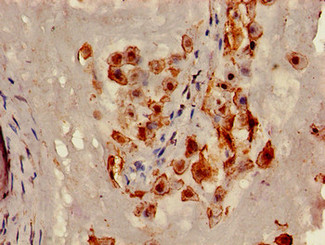 Immunohistochemistry of paraffin-embedded human placenta tissue using CSB-PA004572LA01HU at dilution of 1:100