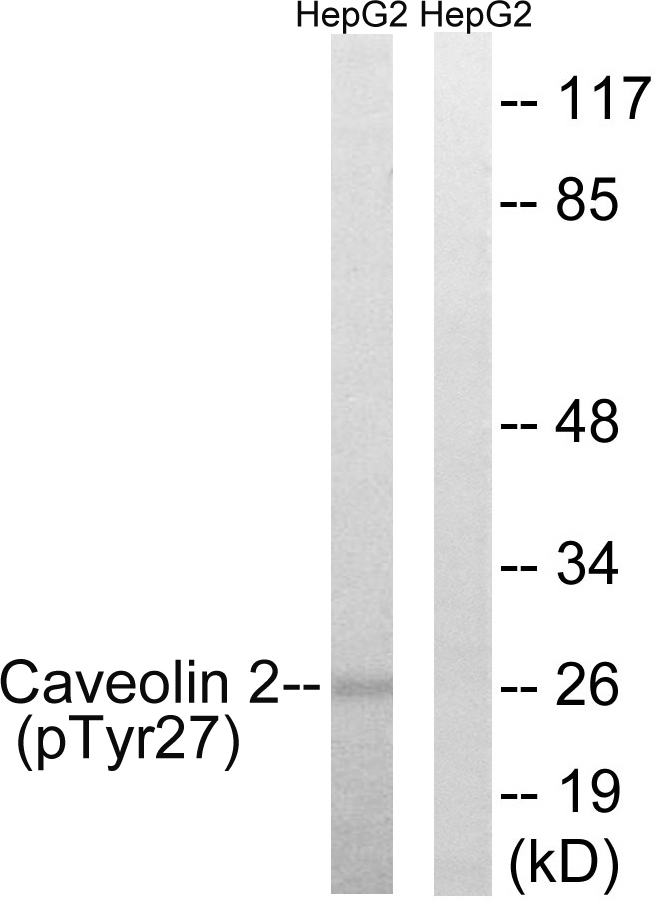 Western blot analysis of lysates from HepG2 cells treated with EGF 200ng/ml 5' , using Caveolin 2 (Phospho-Tyr27) Antibody. The lane on the right is blocked with the phospho peptide.