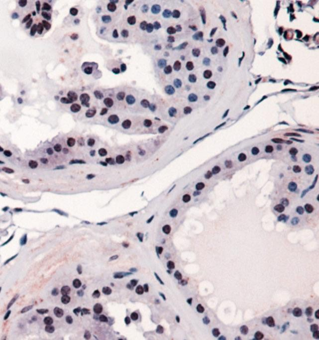 Immunohistochemistry: RUNX2 Antibody - Staining of RUNX2 in mouse prostate using DAB with hematoxylin counterstain.  This image was taken for the unconjugated form of this product. Other forms have not been tested.