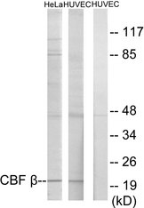 Western blot analysis of lysates from HUVEC and HeLa cells, using CBF beta Antibody. The lane on the right is blocked with the synthesized peptide.