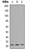 Western blot analysis of CBFB expression in Jurkat (A); HUVEC (B); K562 (C) whole cell lysates.