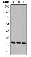 Western blot analysis of Cerebellin 1 expression in HEK293T (A); SP2/0 (B); PC12 (C) whole cell lysates.