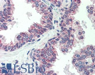 Anti-CBLN1 / Precerebellin antibody IHC of human prostate. Immunohistochemistry of formalin-fixed, paraffin-embedded tissue after heat-induced antigen retrieval. Antibody LS-B478 concentration 10 ug/ml.