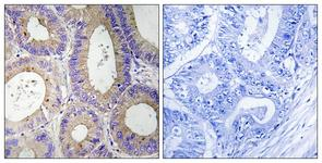 IHC of paraffin-embedded human colon carcinoma tissue, using CBR3 Antibody. The picture on the right is treated with the synthesized peptide.