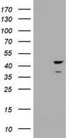HEK293T cells were transfected with the pCMV6-ENTRY control (Left lane) or pCMV6-ENTRY CBX8 (Right lane) cDNA for 48 hrs and lysed. Equivalent amounts of cell lysates (5 ug per lane) were separated by SDS-PAGE and immunoblotted with anti-CBX8.
