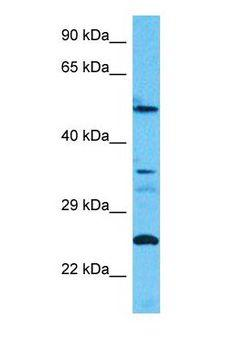 CC2D2B Antibody - Western blot of CC2D2B Antibody with human HT1080 Whole Cell lysate.  This image was taken for the unconjugated form of this product. Other forms have not been tested.