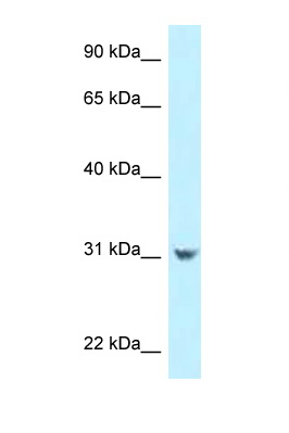 CCDC102B antibody LS-C145955 Western blot of HepG2 Cell lysate. Antibody concentration 1 ug/ml.  This image was taken for the unconjugated form of this product. Other forms have not been tested.