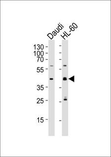 CCDC109B Antibody - Western blot of lysates from Daudi, HL-60 cell line (from left to right), using C109B Antibody. Antibody was diluted at 1:1000 at each lane. A goat anti-rabbit IgG H&L (HRP) at 1:5000 dilution was used as the secondary antibody. Lysates at 35ug per lane.