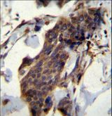 CCDC13 Antibody - CCDC13 Antibody immunohistochemistry of formalin-fixed and paraffin-embedded human bladder carcinoma followed by peroxidase-conjugated secondary antibody and DAB staining.