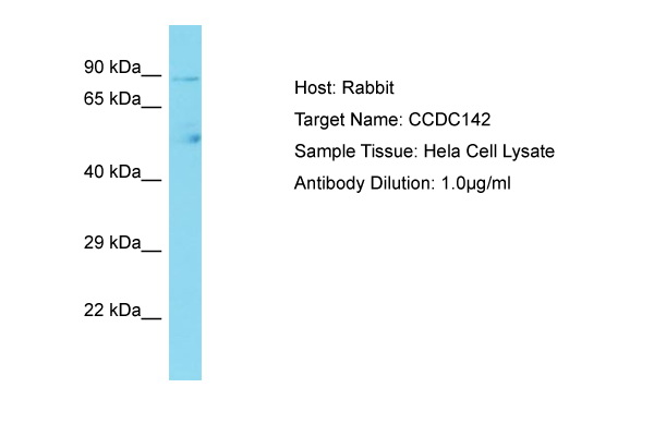 CCDC142 Antibody -  This image was taken for the unconjugated form of this product. Other forms have not been tested.