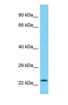 CCDC183 / KIAA1984 Antibody - Western blot of CCDC183 Antibody with human Placenta lysate.  This image was taken for the unconjugated form of this product. Other forms have not been tested.