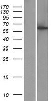 CCDC183 / KIAA1984 Protein - Western validation with an anti-DDK antibody * L: Control HEK293 lysate R: Over-expression lysate