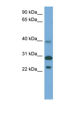 CCDC28A antibody LS-C117263 Western blot of Fetal Muscle lysate.  This image was taken for the unconjugated form of this product. Other forms have not been tested.