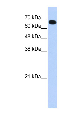 CCDC38 antibody LS-C102541 Western blot of Transfected 293T cell lysate.  This image was taken for the unconjugated form of this product. Other forms have not been tested.