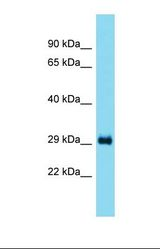 Western blot of Rat Liver. Taco1 antibody dilution 1.0 ug/ml.  This image was taken for the unconjugated form of this product. Other forms have not been tested.