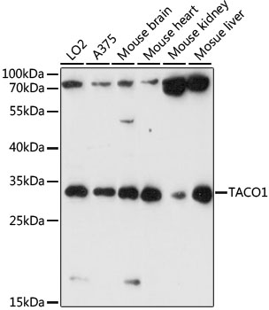 CCDC44 / TACO1 Antibody - Western blot analysis of extracts of various cell lines, using TACO1 antibody at 1:1000 dilution. The secondary antibody used was an HRP Goat Anti-Rabbit IgG (H+L) at 1:10000 dilution. Lysates were loaded 25ug per lane and 3% nonfat dry milk in TBST was used for blocking. An ECL Kit was used for detection and the exposure time was 90s.