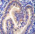 CCDC54 Antibody immunohistochemistry of formalin-fixed and paraffin-embedded human uterus tissue followed by peroxidase-conjugated secondary antibody and DAB staining.