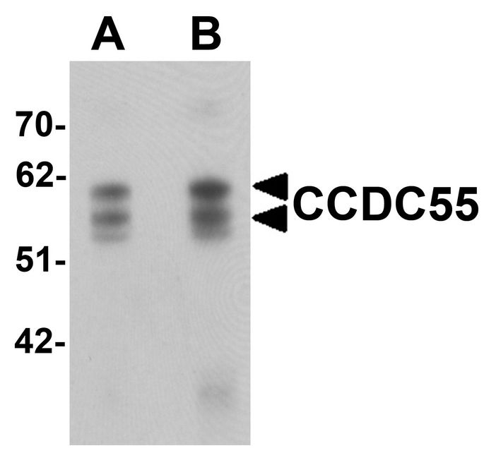 Western blot analysis of CCDC55 in human brain tissue lysate with CCDC55 antibody at (A) 0.5 and (B) 1 ug/ml