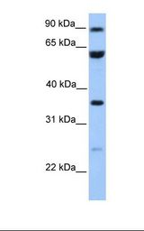 CCDC7 / C10orf68 Antibody - Jurkat cell lysate. Antibody concentration: 1.0 ug/ml. Gel concentration: 12%.  This image was taken for the unconjugated form of this product. Other forms have not been tested.