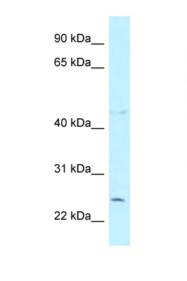 CCDC85B antibody Western blot of COL0205 Cell lysate. Antibody concentration 1 ug/ml.  This image was taken for the unconjugated form of this product. Other forms have not been tested.