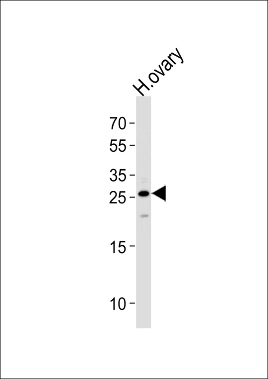 CCDC90B Antibody - Western blot of lysate from human ovary tissue lysate, using CCDC90B Antibody. Antibody was diluted at 1:1000 at each lane. A goat anti-rabbit IgG H&L (HRP) at 1:5000 dilution was used as the secondary antibody. Lysate at 35ug per lane.