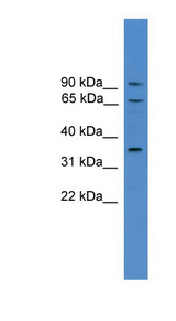 CCIN / Calicin antibody Western blot of HT1080 cell lysate. This image was taken for the unconjugated form of this product. Other forms have not been tested.