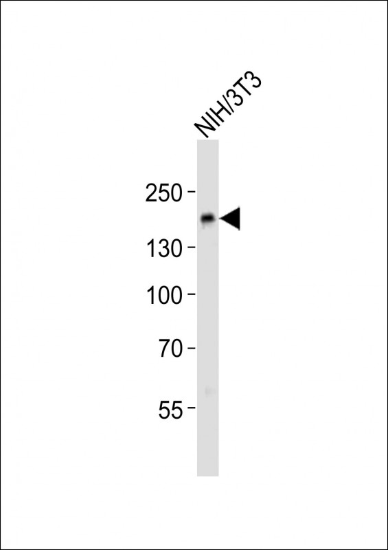 Anti-Ptk7 Antibody at 1:500 dilution + NIH/3T3 whole cell lysates Lysates/proteins at 20 ug per lane. Secondary Goat Anti-Rabbit IgG, (H+L), Peroxidase conjugated at 1/10000 dilution Predicted band size : 118 kDa Blocking/Dilution buffer: 5% NFDM/TBST.