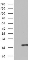 CCL11 / Eotaxin Antibody - HEK293T cells were transfected with the pCMV6-ENTRY control. (Left lane) or pCMV6-ENTRY CCL11. (Right lane) cDNA for 48 hrs and lysed. Equivalent amounts of cell lysates. (5 ug per lane) were separated by SDS-PAGE and immunoblotted with anti-CCL11.