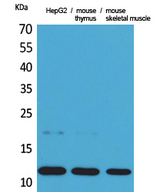 CCL11 / Eotaxin Antibody - Western Blot analysis of extracts from HepG2, mouse thymus, mouse skeletal muscle cells using CCL11 Antibody.