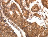 Immunohistochemistry of Human colon cancer using CCL17 Polyclonal Antibody at dilution of 1:70.