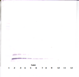 CCL17 / TARC Antibody - Anti-Human TARC (CCL17) Western Blot Reduced