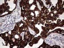 CCL19 / MIP3-Beta Antibody - Immunohistochemical staining of paraffin-embedded Carcinoma of Human lung tissue using anti-CCL19 mouse monoclonal antibody. (Heat-induced epitope retrieval by 1 mM EDTA in 10mM Tris, pH8.5, 120C for 3min,