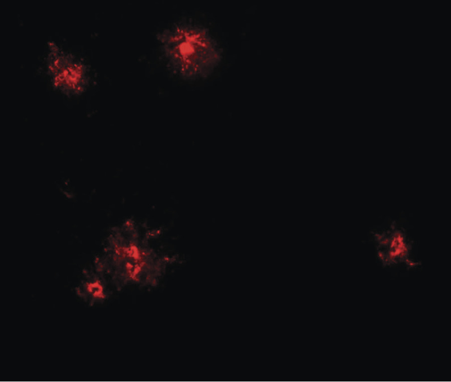Immunofluorescence of CCL2 in human spleen tissue with CCL2 antibody at 20 ug/ml.