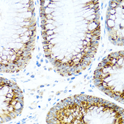 CCL2 / MCP1 Antibody - Immunohistochemistry of paraffin-embedded human colon tissue.