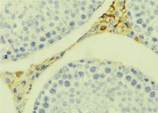 CCL20 / MIP-3-Alpha Antibody - 1:100 staining mouse testis tissue by IHC-P. The sample was formaldehyde fixed and a heat mediated antigen retrieval step in citrate buffer was performed. The sample was then blocked and incubated with the antibody for 1.5 hours at 22°C. An HRP conjugated goat anti-rabbit antibody was used as the secondary.
