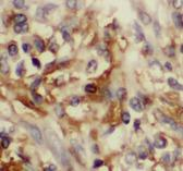 CCL20 / MIP-3-Alpha Antibody - Immunohistochemistry of paraffin-embedded human lung cancer tissue slide using MIP-3a antibody at dilution of 1:200