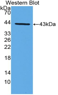 CCL22 / MDC Antibody - Western blot of recombinant MDC / CCL22.