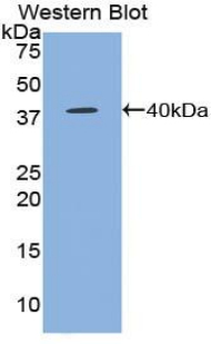 CCL5 / RANTES Antibody - Western blot of recombinant CCL5 / RANTES.  This image was taken for the unconjugated form of this product. Other forms have not been tested.