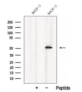 CCM2 / Malcavernin Antibody - Western blot analysis of extracts of 3T3 cells using CCM2 antibody. The lane on the left was treated with blocking peptide.