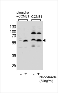 Western blot of lysate from HeLa cells(from left to right),untreated or treated with Nocodazole at 50ng/ml,using Phospho-CCNB1-S35 Antibody or CCNB1-S9 Antibody.Lysate at 15ug per lane.Antibody was diluted at 1:1100 dilution at each lane. A goat anti-rabbit IgG H&L (HRP) at 1:5000 dilution was used as the secondary antibody.