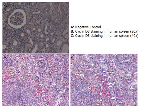 CCND3 / Cyclin D3 Antibody - Immunohistochemistry with anti-Cyclin D3 antibody showing Cyclin D3 staining in nucleus of lymphocytes in human spleen at 20x and 40x (B & C). Formalin fixed/paraffin embedded sections were subjected to heat induced epitope retrieval (HIER) at pH 6.2 and then incubated with rabbit anti-mouse Cyclin D3 antibody at 4.0 µg/ml for 60 minutes. The reaction was developed using MACH 4 universal AP polymer detection system and visualized with WARP RED.