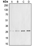 Western blot analysis of Cyclin G1 expression in DLD (A); Jurkat (B); mouse liver (C); rat liver (D) whole cell lysates.