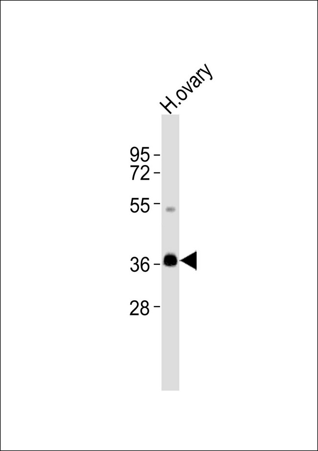 Anti-Cyclin G1 Antibody at 1:1000 dilution + human ovary lysates Lysates/proteins at 20 ug per lane. Secondary Goat Anti-Rabbit IgG, (H+L),Peroxidase conjugated at 1/10000 dilution Predicted band size : 34 kDa Blocking/Dilution buffer: 5% NFDM/TBST.