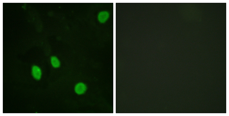 Immunofluorescence analysis of HeLa cells, using Cyclin H Antibody. The picture on the right is blocked with the synthesized peptide.