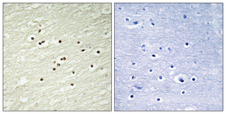 Immunohistochemistry analysis of paraffin-embedded human brain tissue, using Cyclin H Antibody. The picture on the right is blocked with the synthesized peptide.