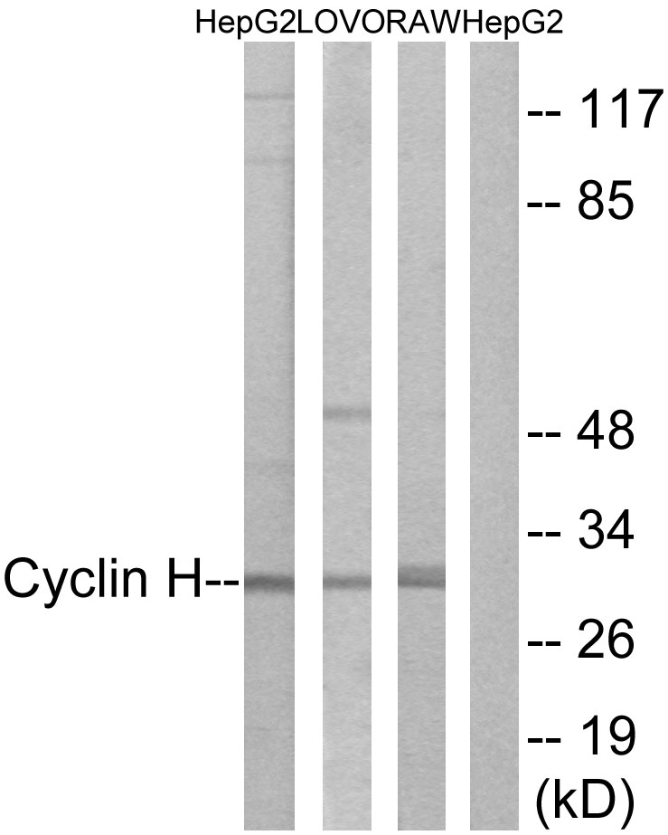 Western blot analysis of lysates from HepG2, LOVO, and RAW264.7 cells, using Cyclin H Antibody. The lane on the right is blocked with the synthesized peptide.