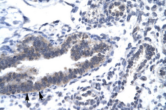 CCNH / Cyclin H antibody LS-C30772 IHC of formalin-fixed, paraffin-embedded human Lung. Positive label: Epithelial cells of bronchiole indicated with arrows. Antibody concentration 4-8 ug/ml. Magnification 400X.  This image was taken for the unconjugated form of this product. Other forms have not been tested.