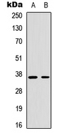 Western blot analysis of Cyclin H (pT315) expression in Jurkat UV-treated (A); A549 UV-treated (B) whole cell lysates.