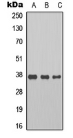 Western blot analysis of Cyclin H expression in HeLa (A); LOVO (B); RAW264.7 (C) whole cell lysates.